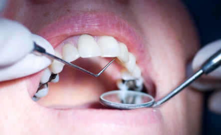 Do Cavities in the Mouth Ever Refill on Their Own if They are Small Enough?
