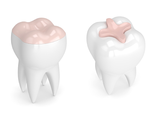 3D modeling image of dental inlays and onlays in Davis, CA